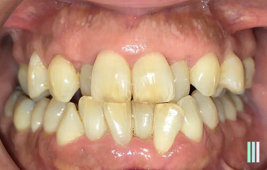 Ortodoncia Invisalign y Carillas Cerámicas