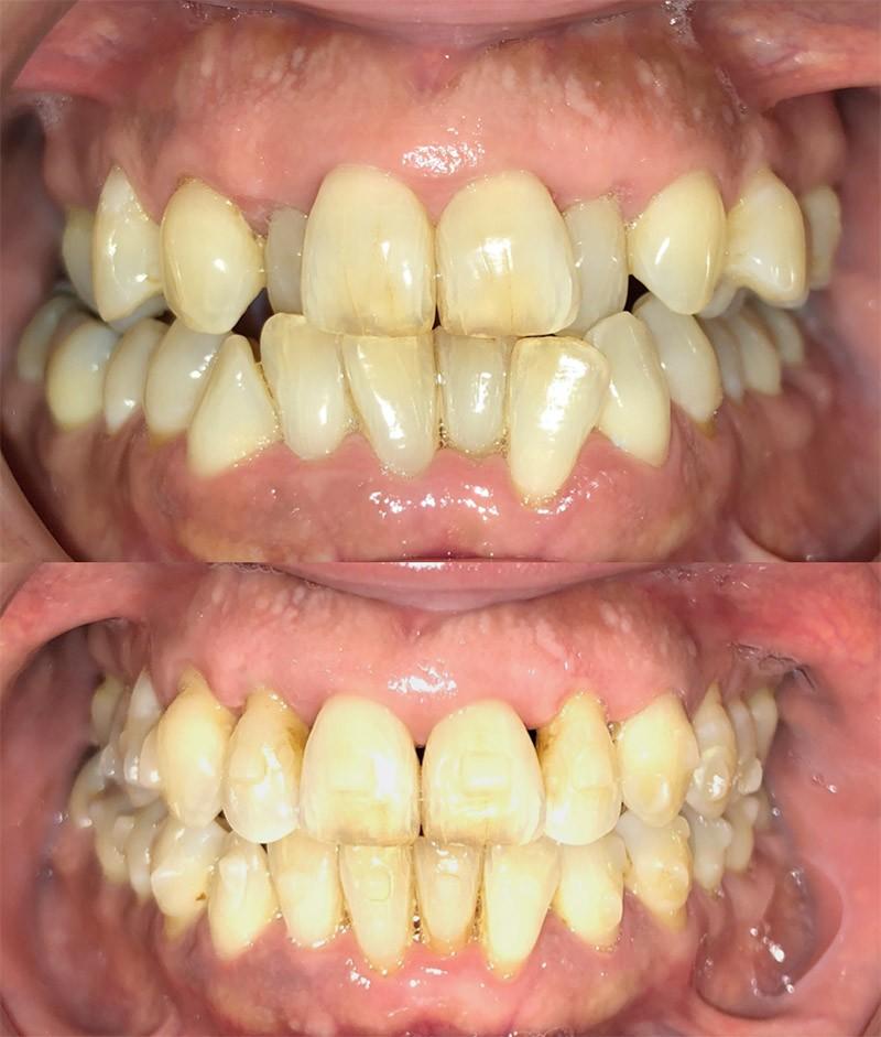 Caso: Ortodoncia Invisalign y Carillas Cerámicas