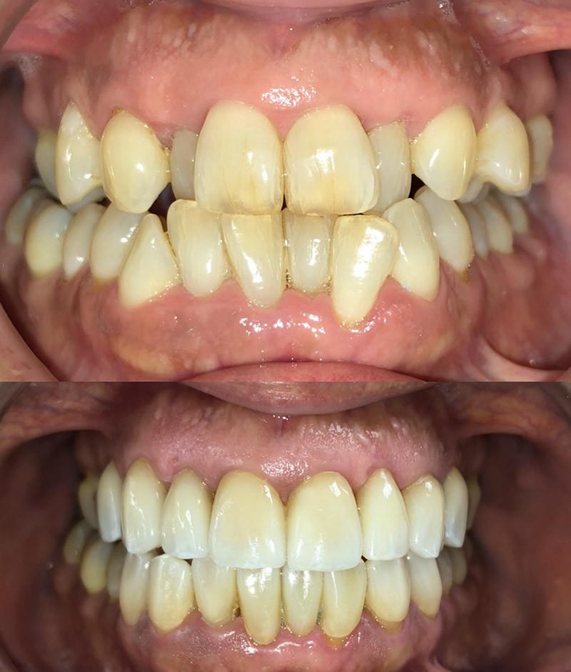 Caso: Ortodoncia Invisalign y Carillas Cerámicas - Clínica Crespí Gandía