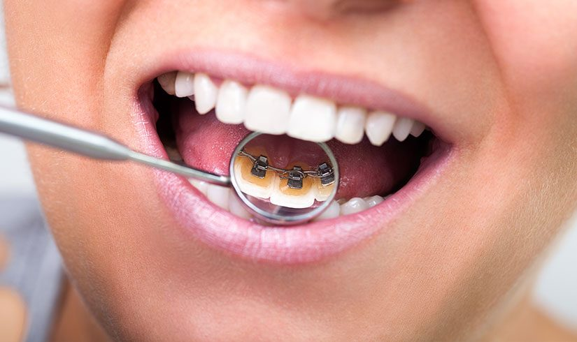 Ortodoncia lingual con brackets linguales incognito