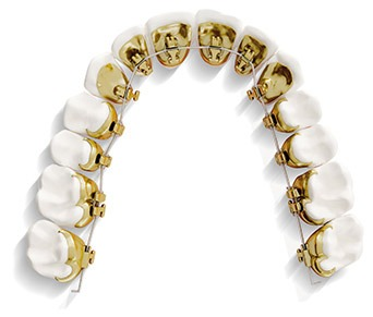 ortodoncia lingual incognito