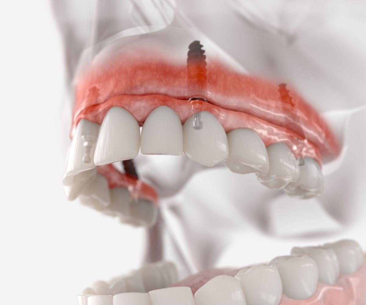 Prótesis sobre implantes - Tecnica All on 4 y All on 6
